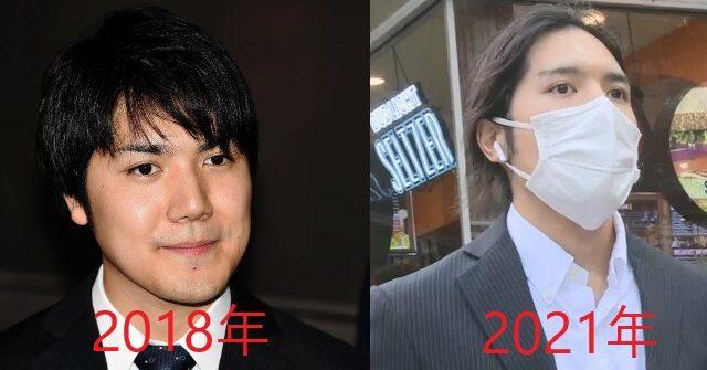 小室圭の眉毛の変化
