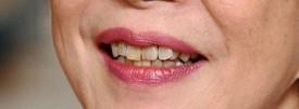 高市早苗の歯